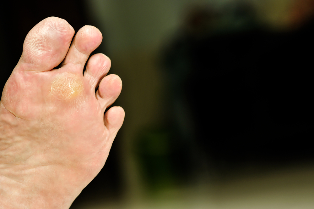 Podiatry Blog Foot Doctor Manalapan Nj 07726 Foot Doctor Oakwood