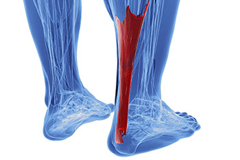 Achilles Tendon Treatment Foot Doctor Manalapan Nj 07726 Foot