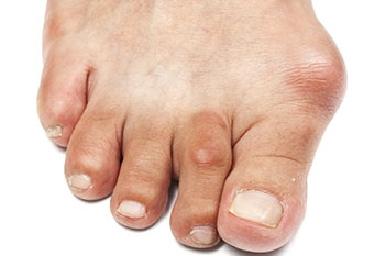 Bunions Treatment Foot Doctor Manalapan Nj 07726 Foot Doctor