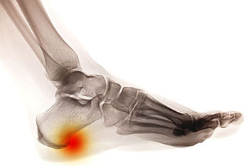Heel Spurs Treatment Foot Doctor Manalapan Nj 07726 Foot Doctor