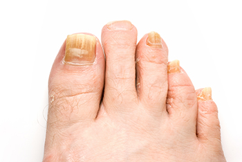 Fungus Toenails Treatment Foot Doctor Manalapan Nj 07726 Foot
