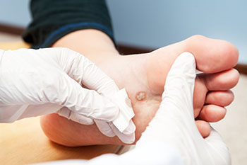 Plantar Warts Treatment Foot Doctor Manalapan Nj 07726 Foot